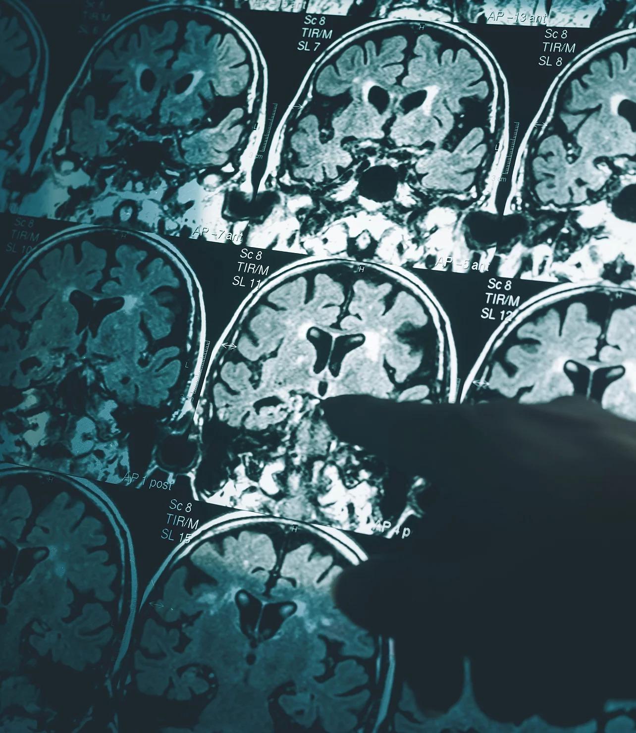 Oxford Brain Diagnostics
